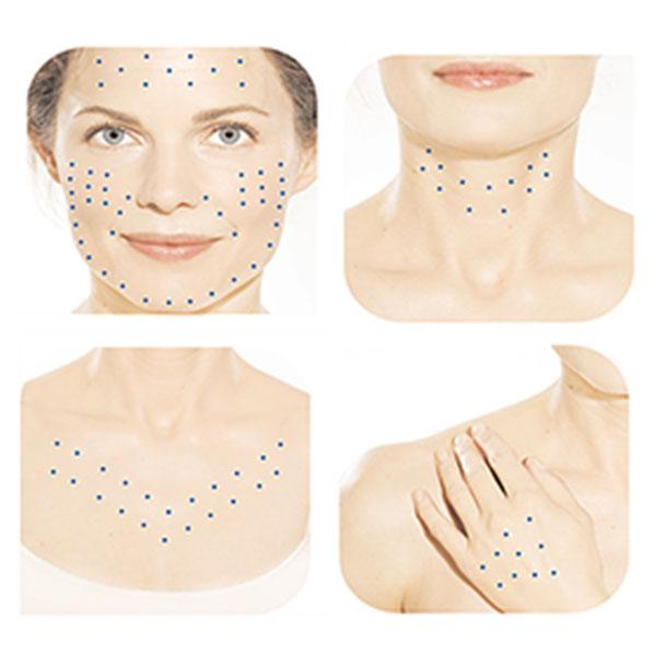 Áreas de Atuação do Skinbooster no Corpo