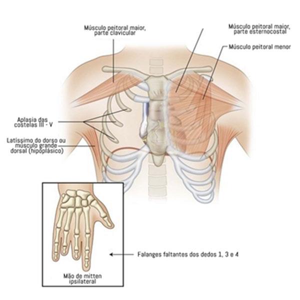 Simbraquidactilia