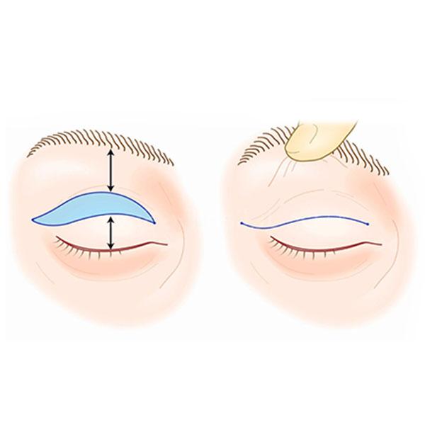 Anestesia na Blefaroplastia