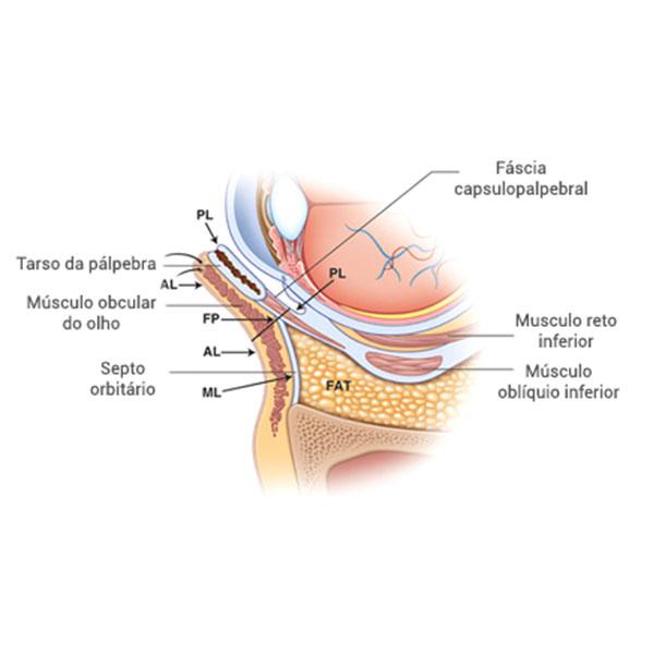 Cirurgia de Pálpebras