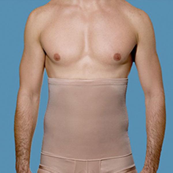 Cirurgia Plástica Abdominoplastia