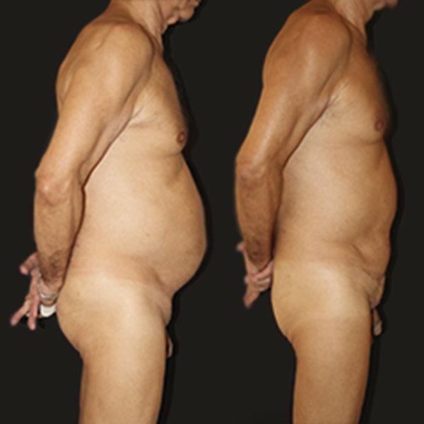 Resultados - Cirurgia Plástica Abdominoplastia