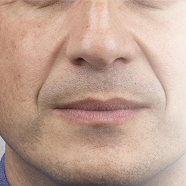 Sulco Nasolabial