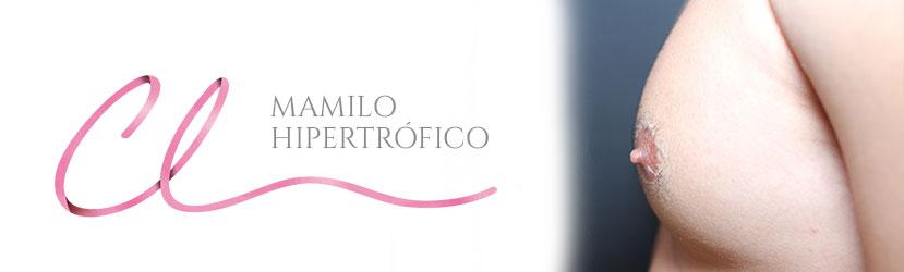 Cirurgia de Hipertrofia de Mamilo