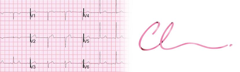 Exame de Eletrocardiograma, Essencial a um Pré-Operatório