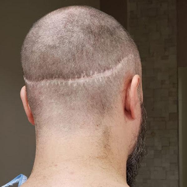Cicatriz Alargada