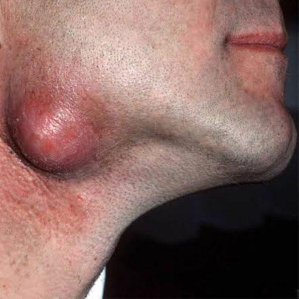 Cirurgia de Cisto Sebáceo
